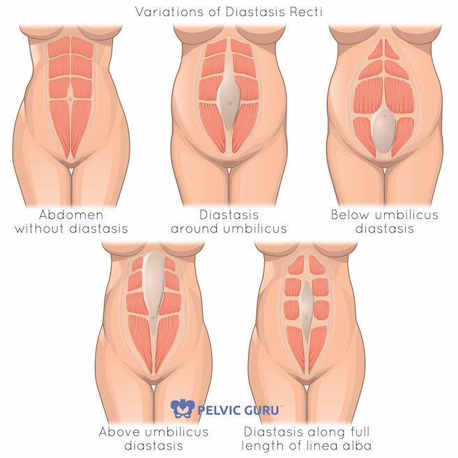 3 Signs An Exercise Is Not Safe With Diastasis Recti